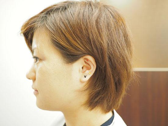 耳ツボジュエリー施術例1